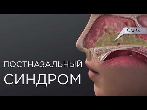Задняя стенка носоглотки болит