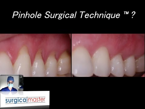 What Is The Pinhole Surgical Technique® (a SurgicalMaster™ QuickLecture)