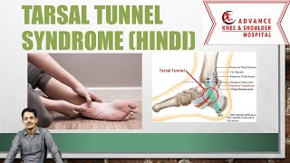 How to Diagnose Tarsal Tunnel Syndrome.