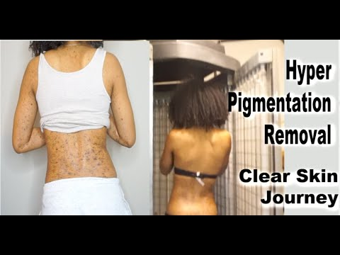Update What Happened To My Skin Uvb Phototherapy For Hyper Pigmentation Dark Spots Skin Journey