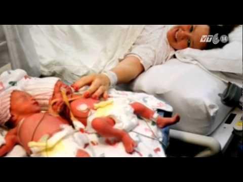 VTC14_Mỹ: Cặp chị em song sinh nắm chặt tay nhau lúc chào đời