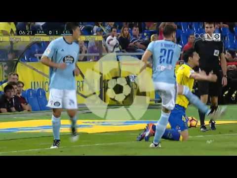 UD Las Palmas 3 RC Celta de Vigo 3 | Partido Completo FULL MATCH 30/10/2016