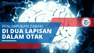 Bom Waktu di Kepala Anda : Waspadai Aneurisma Otak!.