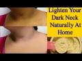 Skin Whitening For Dark Neck - Dark Neck Home Remedy *Simple Beauty Secrets*