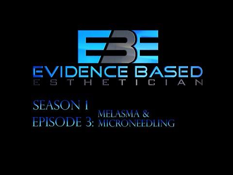 Evidence Based Esthetician Season 1 Episode 3: Melasma & Microneedling