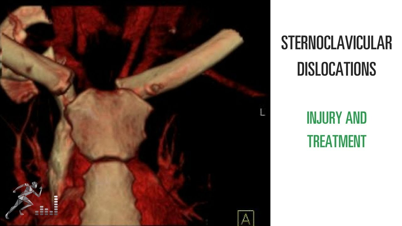 boala sternoclaviculara