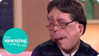 adam pearson talks about judging people by their looks this morning