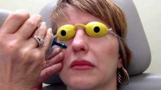 Laser treatment for crows feet, fine lines & dark circles around the eye area.