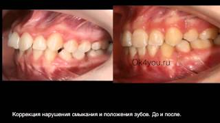 Ортодонтическое исправление положения клыков
