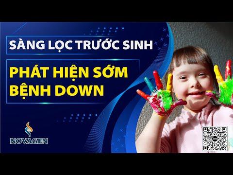 SÀNG LỌC TRƯỚC SINH PHÁT HIỆN SỚM BỆNH DOWN  | Dr Hoàng NOVAGEN