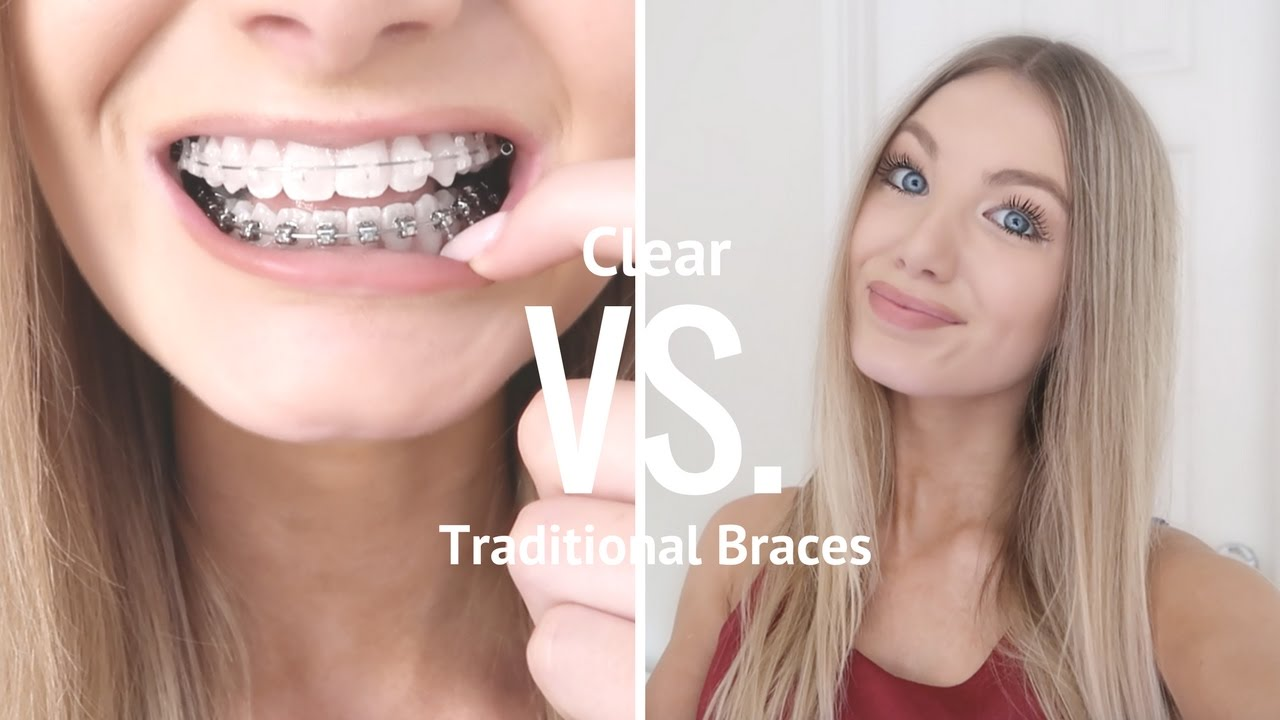 Adult Clear Braces