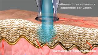 Le traitement de la couperose au laser à Paris