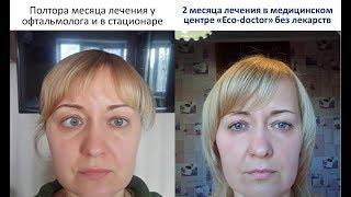 """Лечение косоглазия и астмы за 2-3 месяца прибором """"Паркес"""" . Эко-доктор"""