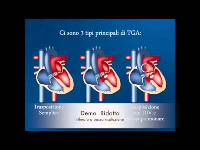 Trasposiz Grande Arterie LD