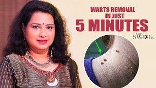 வலியில்லாமல் நிரந்தரமாக மருவை நீக்க எளிய வழி | Vasunthara Series
