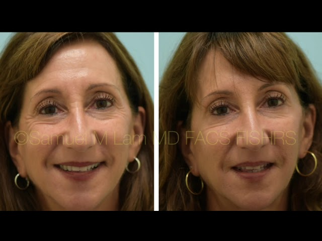 Dallas Botox Testimonial Before and After Photos