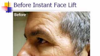 Instant Face Lift Cream Thumbnail