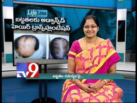 Advanced treatment for Baldness
