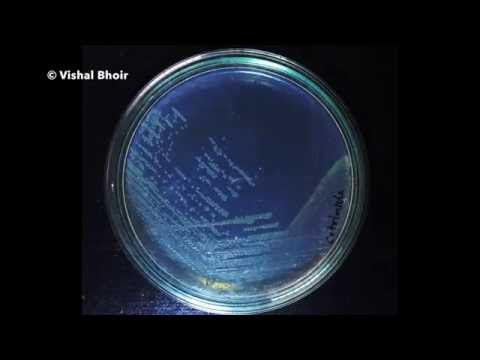 Growth of Bacteria - Time Lapse