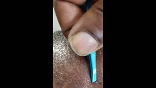 pimple popping  barber Dogon style.