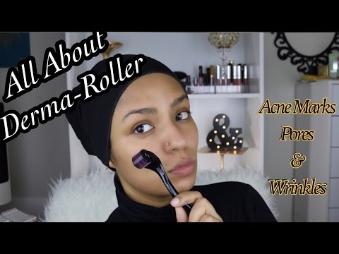 HOW I GET RID OF THE HYPERPIGMENTATION & ACNE MARKS - DERMAROLLER 101
