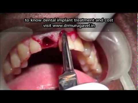 Upper Front teeth extraction and Immediate Dental implant in chennai