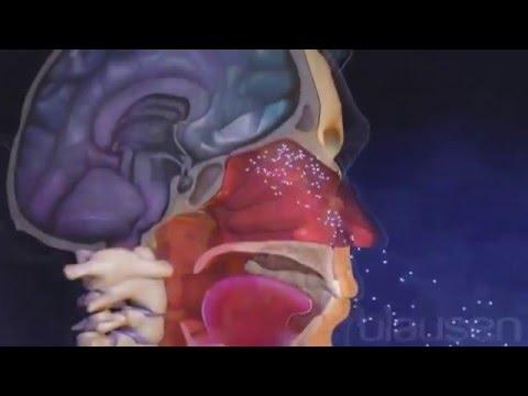 Свинка (паротит), Эпидемический паротит у взрослых и детей, симптомы