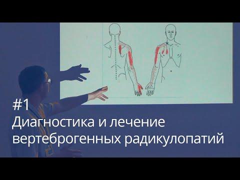 Диагностика и лечение вертеброгенных радикулопатий (часть 1)