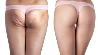 Cellulite Cream | Finulite Before And After | Amazon FREE Finulite Anti Cellulite Soap Thumbnail