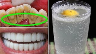 Download Как Быстро Отбелить Зубы В Домашних Условиях Mp3 and Videos