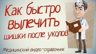 видео Абсцесс ягодицы после укола: фото, лечение