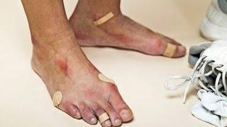 лечение косточки на большом пальце \ можно есть помидоры при подагре