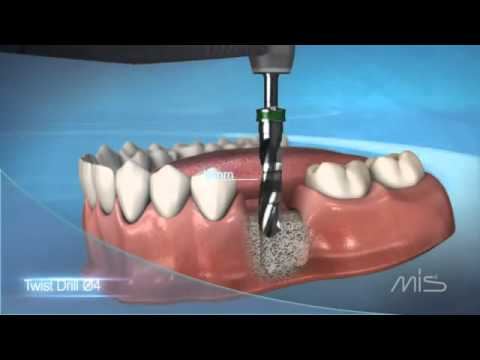 Procedimiento de colocación de implante dental MIS