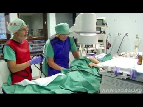 Colonoscopy, endoscopic examination of the colon • Oncolex