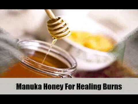 7 Effective Home Remedies For Burns