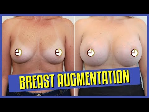 Breast Implants – 500cc Round Implants on Top of Muscle (Barrel Chest)