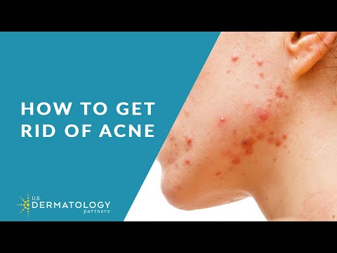 Acne Treatment - Explained by Dermatologist