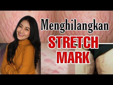 Cara Menghilangkan Stretch Mark Secara Alami, Ternyata Gampang! | DokterSehat.