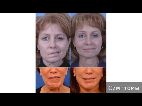 Асимметрия лица. Как лечить ассиметрию лица.