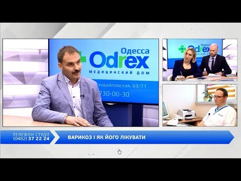 Лечение хронической варикозной недостаточности - Александр Смирнов в эфире Думская-ТВ