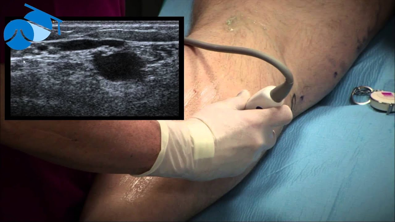 Marking Of Small Saphenous Vein Ssv And Incompetent Perforating