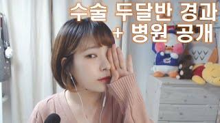 [병원공개!!] 매부리코+처진코끝(화살코)의 무보형물 …