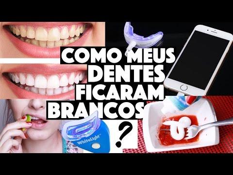 Dentes Brancos Todos Os Truques Receitas E Produtos Que Uso Kim