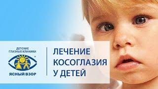 видео Лечение косоглазия у детей