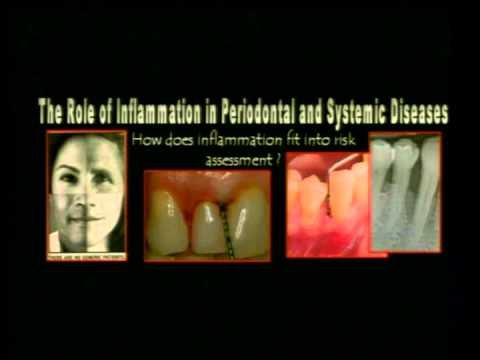 The Role of Inflammation in Periodontal and Systemic Diseases - Part I (2007)