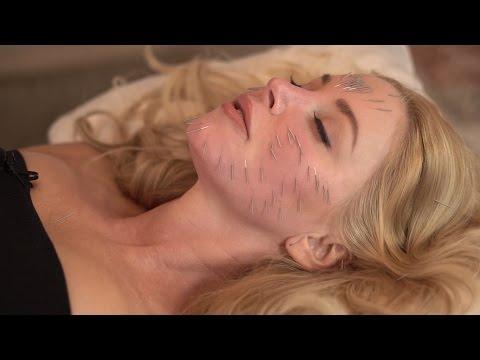 Anti-aging Acupuncture Facial