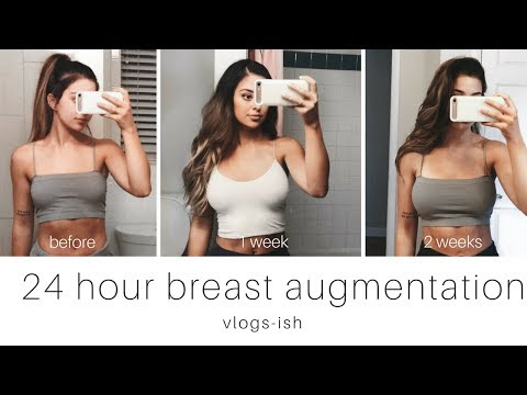 24 hour breast augmentation | vlogs (kinda)