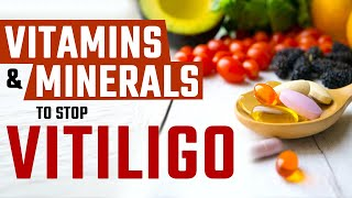 Vitamins and Minerals to Stop …
