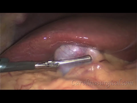 Gallbladder removal surgery