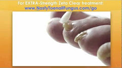 Treating Toenail Fungus In 60 Days Or Less With Powerful Toenail Fungus Treatments